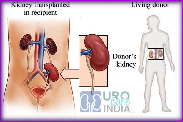 Viagra For Kidney Transplant Patients